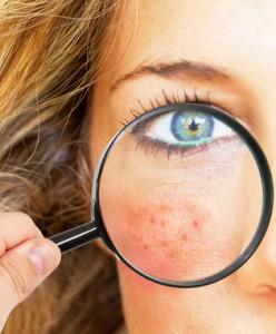 Hauterkrankung-Psoriasis-Neurodermitis-Allergie-Ekzem